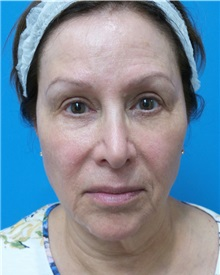 Facelift Before Photo by Michael Epstein, MD; Northbrook, IL - Case 34608