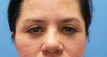 Eyelid Surgery After Photo by Michael Epstein, MD; Northbrook, IL - Case 35085