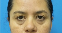 Eyelid Surgery Before Photo by Michael Epstein, MD; Northbrook, IL - Case 35085