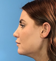 Rhinoplasty After Photo by Michael Epstein, MD; Northbrook, IL - Case 35347