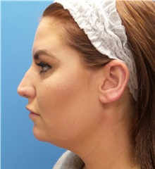 Rhinoplasty Before Photo by Michael Epstein, MD; Northbrook, IL - Case 35347