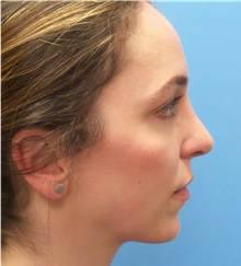 Rhinoplasty After Photo by Michael Epstein, MD; Northbrook, IL - Case 35683