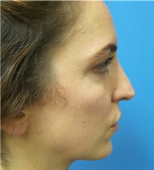 Rhinoplasty Before Photo by Michael Epstein, MD; Northbrook, IL - Case 35683