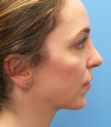 Brow Lift After Photo by Michael Epstein, MD; Northbrook, IL - Case 35684