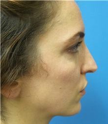 Brow Lift Before Photo by Michael Epstein, MD; Northbrook, IL - Case 35684