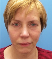 Facelift After Photo by Michael Epstein, MD; Northbrook, IL - Case 35744