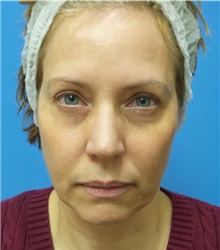 Facelift Before Photo by Michael Epstein, MD; Northbrook, IL - Case 35744