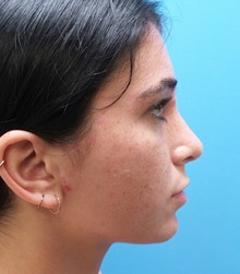 Rhinoplasty After Photo by Michael Epstein, MD; Northbrook, IL - Case 36351