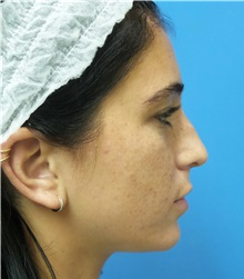 Rhinoplasty Before Photo by Michael Epstein, MD; Northbrook, IL - Case 36351