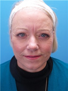 Facelift After Photo by Michael Epstein, MD; Northbrook, IL - Case 38386