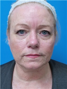 Facelift Before Photo by Michael Epstein, MD; Northbrook, IL - Case 38386