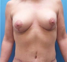 Breast Augmentation After Photo by Michael Epstein, MD; Northbrook, IL - Case 39752