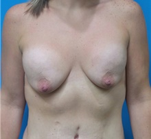 Breast Augmentation Before Photo by Michael Epstein, MD; Northbrook, IL - Case 39752