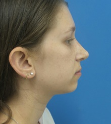 Rhinoplasty After Photo by Michael Epstein, MD; Northbrook, IL - Case 40945