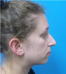 Rhinoplasty Before Photo by Michael Epstein, MD; Northbrook, IL - Case 40945