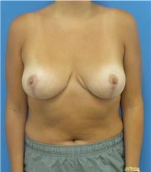Breast Reduction After Photo by Michael Epstein, MD; Northbrook, IL - Case 40959
