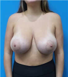 Breast Reduction Before Photo by Michael Epstein, MD; Northbrook, IL - Case 40959