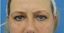 Eyelid Surgery After Photo by Michael Epstein, MD; Northbrook, IL - Case 40975