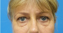Eyelid Surgery Before Photo by Michael Epstein, MD; Northbrook, IL - Case 40975