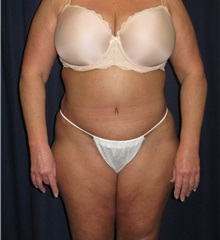 Tummy Tuck After Photo by Gary Culbertson, MD, FACS; Sumter, SC - Case 33018