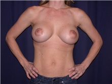 Breast Augmentation After Photo by Gary Culbertson, MD, FACS; Sumter, SC - Case 33275