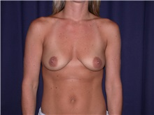 Breast Augmentation Before Photo by Gary Culbertson, MD, FACS; Sumter, SC - Case 33275