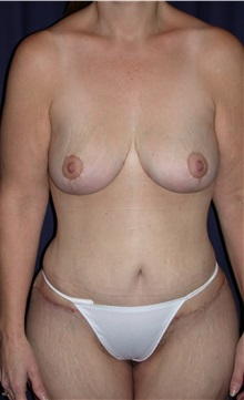 Body Contouring After Photo by Gary Culbertson, MD, FACS; Sumter, SC - Case 33276