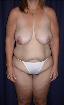Body Contouring Before Photo by Gary Culbertson, MD, FACS; Sumter, SC - Case 33276