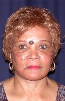Facelift After Photo by Gary Culbertson, MD, FACS; Sumter, SC - Case 33289