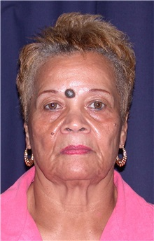 Facelift Before Photo by Gary Culbertson, MD, FACS; Sumter, SC - Case 33289