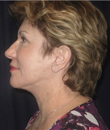 Facelift After Photo by Gary Culbertson, MD, FACS; Sumter, SC - Case 33290