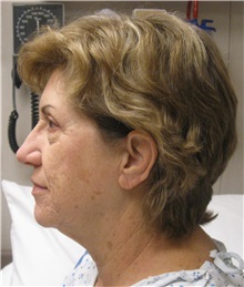 Facelift Before Photo by Gary Culbertson, MD, FACS; Sumter, SC - Case 33290