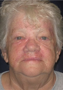 Head and Neck Skin Cancer Reconstruction After Photo by Gary Culbertson, MD, FACS; Sumter, SC - Case 33292