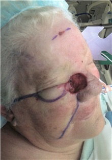 Head and Neck Skin Cancer Reconstruction Before Photo by Gary Culbertson, MD, FACS; Sumter, SC - Case 33292
