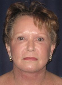Facelift After Photo by Gary Culbertson, MD, FACS; Sumter, SC - Case 33294