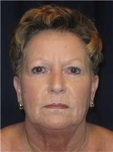 Facelift Before Photo by Gary Culbertson, MD, FACS; Sumter, SC - Case 33294