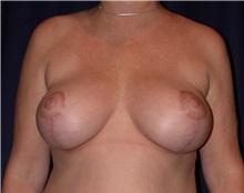 Breast Lift After Photo by Gary Culbertson, MD, FACS; Sumter, SC - Case 33316