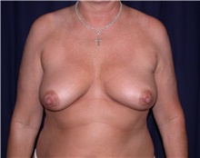 Breast Lift Before Photo by Gary Culbertson, MD, FACS; Sumter, SC - Case 33316