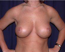 Breast Augmentation After Photo by Gary Culbertson, MD, FACS; Sumter, SC - Case 33321
