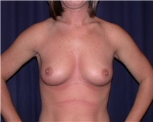 Breast Augmentation Before Photo by Gary Culbertson, MD, FACS; Sumter, SC - Case 33321