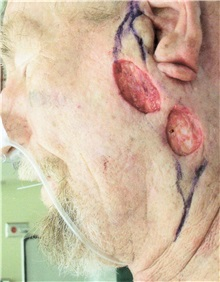 Head-Neck Cancer Reconstruction Before Photo by Gary Culbertson, MD, FACS; Sumter, SC - Case 33329