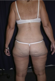 Buttock Lift with Augmentation Before Photo by Gary Culbertson, MD, FACS; Sumter, SC - Case 33338