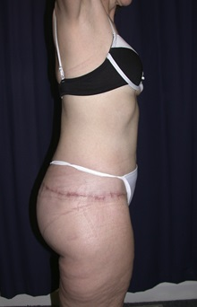 Buttock Lift with Augmentation After Photo by Gary Culbertson, MD, FACS; Sumter, SC - Case 33338
