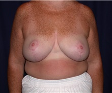 Breast Reduction After Photo by Gary Culbertson, MD, FACS; Sumter, SC - Case 33341