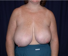 Breast Reduction Before Photo by Gary Culbertson, MD, FACS; Sumter, SC - Case 33341