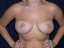 Breast Reduction After Photo by Gary Culbertson, MD, FACS; Sumter, SC - Case 33344