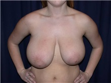 Breast Reduction Before Photo by Gary Culbertson, MD, FACS; Sumter, SC - Case 33344