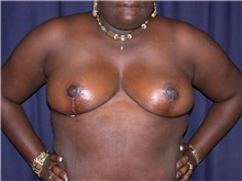 Breast Reduction After Photo by Gary Culbertson, MD, FACS; Sumter, SC - Case 33345