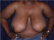 Breast Reduction Before Photo by Gary Culbertson, MD, FACS; Sumter, SC - Case 33345