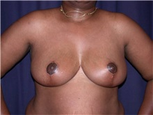 Breast Reduction After Photo by Gary Culbertson, MD, FACS; Sumter, SC - Case 33346